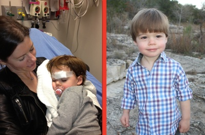 Hayes, before and after his emergency room visit to Medical City Dallas Hospital