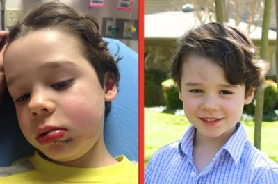 Rollins, before and after his emergency room visit to Medical City Dallas Hospital