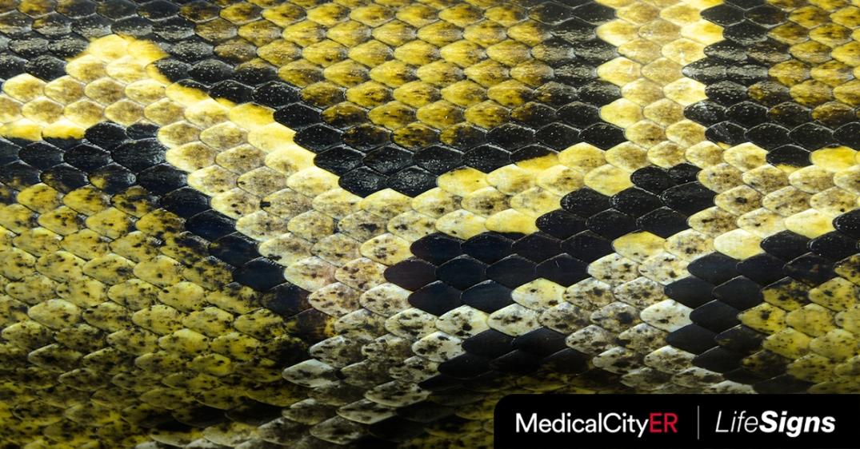 Snakebites-FB